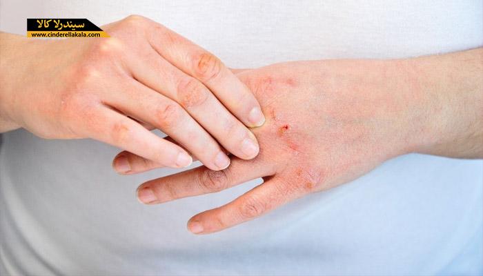 درمان خشکی پوست دست ها