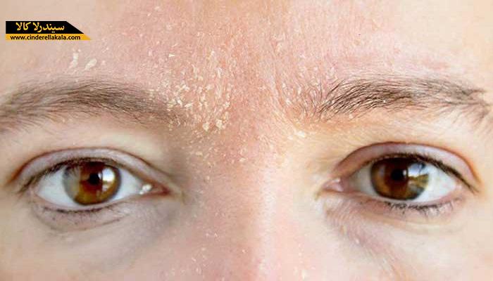 راهکارهای جلوگیری از خشکی پوست